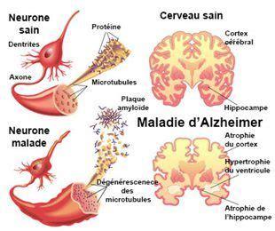 152 Best Images About Alzheimer On Pinterest Medical