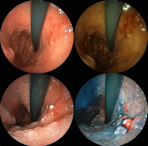 stomach tumor file por sig jpg wikimedia commons