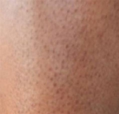 pores of color how to get rid of strawberry legs pores cure