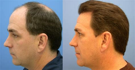 is hair transplant safe this is what you need to know about fue hair transplant