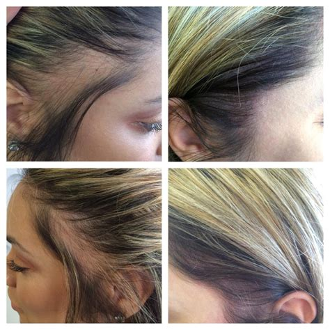 hairline tattoo scalp for hair loss medicine of cosmetics adelaide