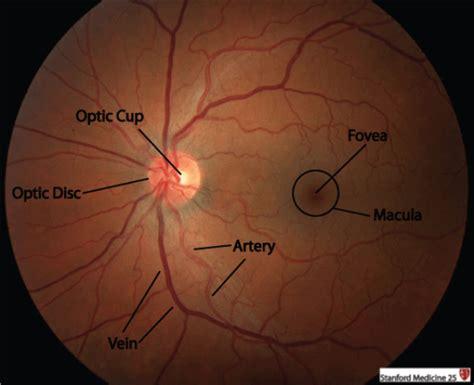 fundus exam findings fundoscopic ophthalmoscopic exam stanford medicine 25
