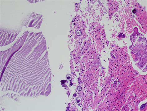 Cystic Lymphangioma Pathology Outlines by Pathology Outlines Parasitic Cyst