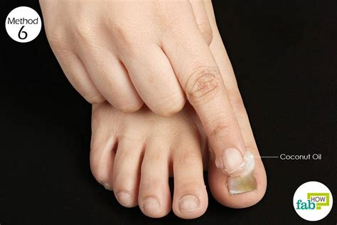 how to get rid of toenail fungus fab how