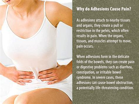 adhesions post c section c sections and pain