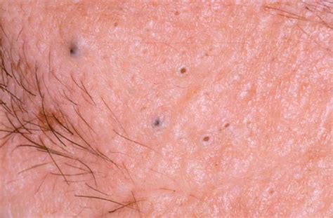 black head medical pictures info blackhead acne