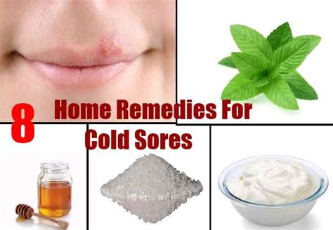simple home remedies for cold sores remedies for