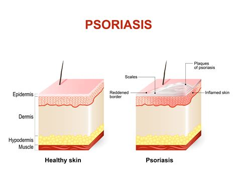 Bed Bug Look Like Psoriasis Causes And Psoriasis Treatment Best Scabies