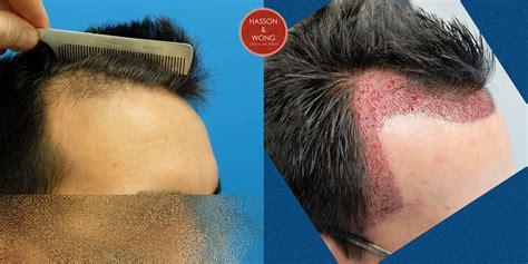 fut hong kong hair transplant dr wong 2215 grafts hair transplant fut immediate post