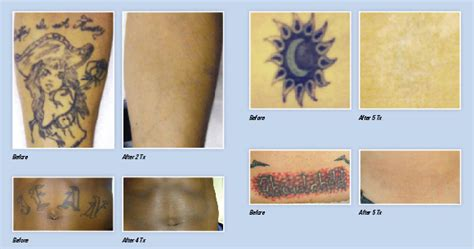 yag laser tattoo removal before and after q switched nd yag laser for sale astanza duality laser