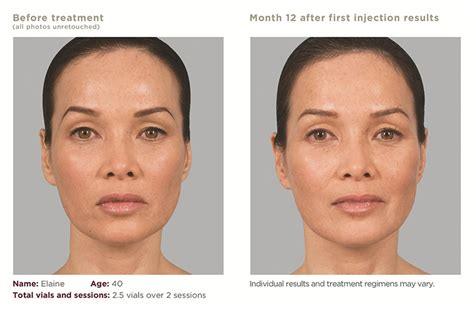 sculptra treatment in los angeles amp beverly hills at epione