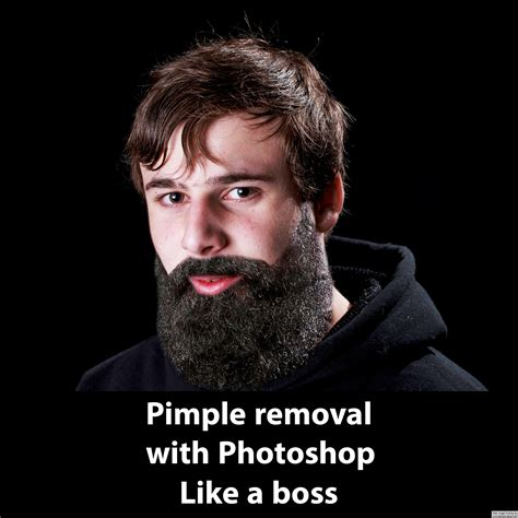 Pimple Meme - pimple meme 28 images if you suffer from adult acne