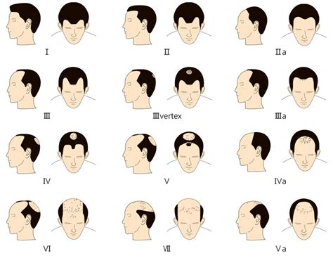 male pattern hair loss emedicine male pattern hair loss medikemos clinic