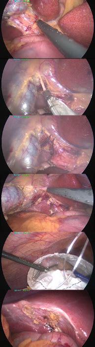 alimentazione dopo colecistectomia colecistectomia dr med f volont 233 studio medico