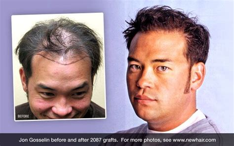 john and kate plus 8 hairstyles 7 best images about celebrity hair transplants on