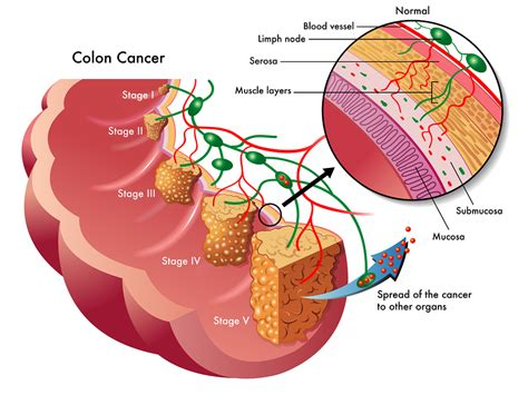 Oncology Cancer 4 In 1 C staging of colon cancer net health book