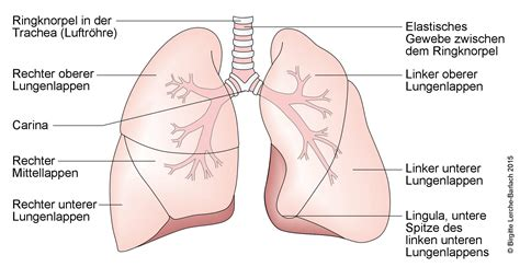 Beschriftung Lunge by Lungenentz 252 Ndung Pneumonie Deximed