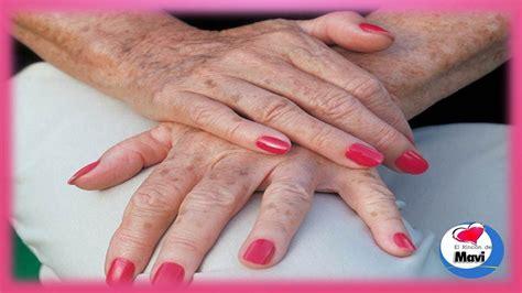 tratamientos tratamientos para las manchas remedios caseros y tratamientos naturales para las manchas