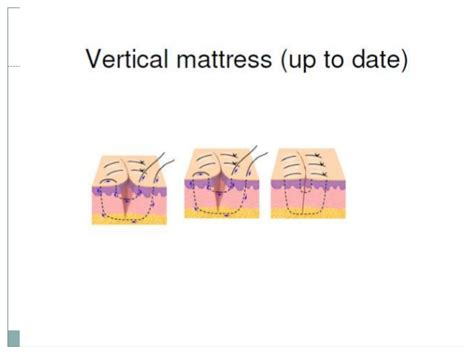 Vertical Mattress Suture Pattern by Sutures And Suturing Patterns In Surgery Modern Innovations