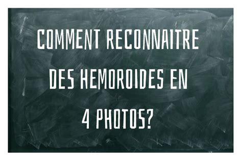 emorroide interne comment reconnaitre des hemoroides en 4 photos