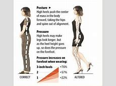 High Heels: Why daily wear adds up to severe pain issues. Lengthened Muscles