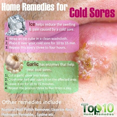 home remedies for cold sores top 10 home remedies