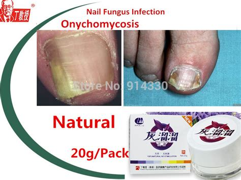 2 packs nail fungus treatment onychomycosis paronychia