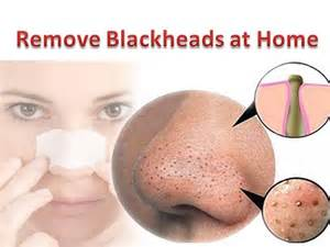 how do you get home how to get rid of blackheads on your nose fast style