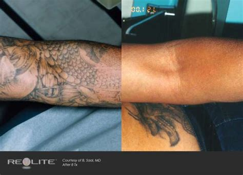 tattoo removal nc laser removal before and after carolina