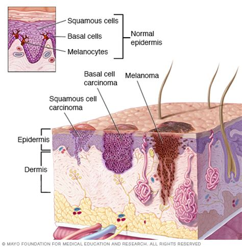 basal cell carcinoma disease reference guide drugs
