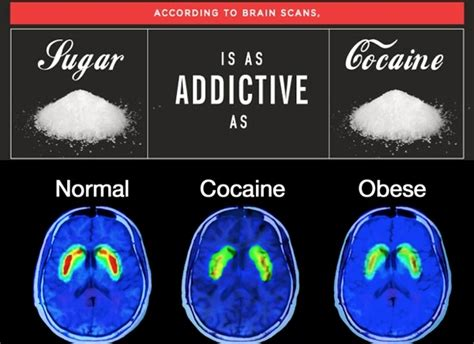 What Happens During A Sugar Detox by How Obesity Affects Overall Health Itchy