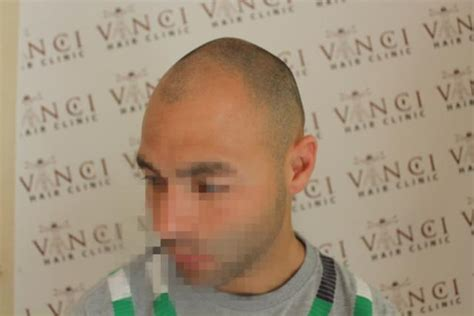 how to conceal hair transplant scar haircuts that hide a hair transplant scar fue neograft