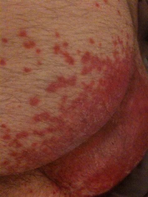 itchy bum remedy rash in my