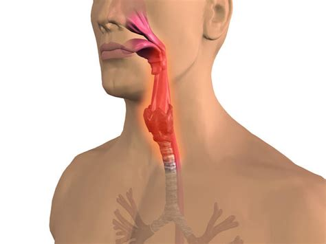 has something stuck in throat the back of my throat is doctor insights on healthtap