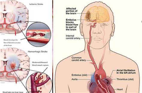 gejala penyebab penyakit stroke dan cara penyembuhan obat sakit stroke tradisional obat untuk mencegah dan