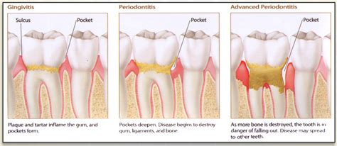 gingivitis treatment 171 dentist san juan capistrano ca cosmetic dental implants call 949 429 0122