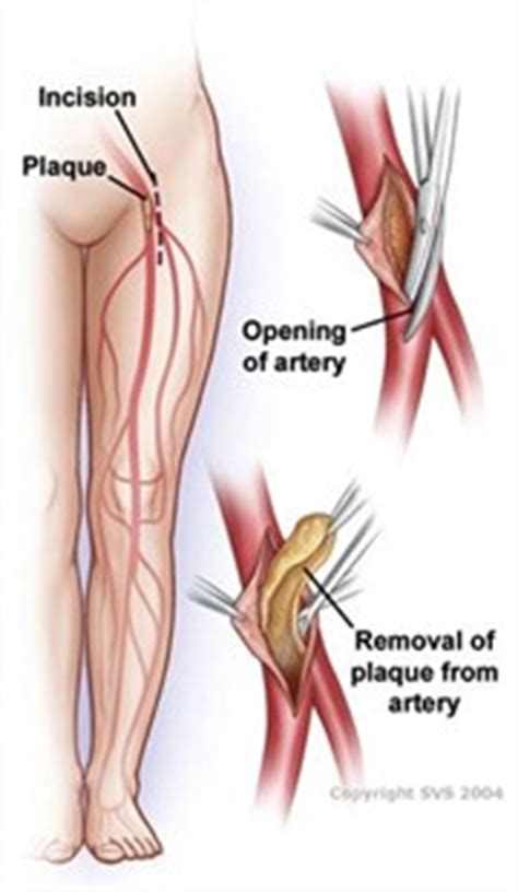 Femoral Popliteal Bypass Anatomy