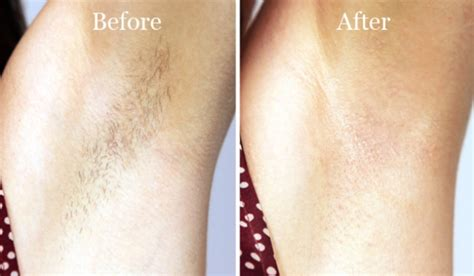 wax photos before and after hair removal how to wax your own lip at home lip hair removal methods