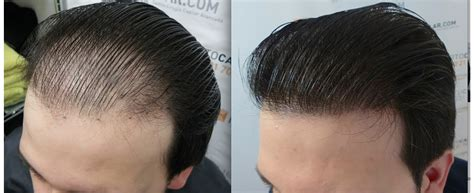 Best Type Of Hair Transplant by Cosmo Hair Transplant In Hyderabad