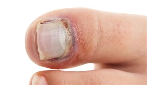 Nail Problems by Hilary Redditch Chiropodist