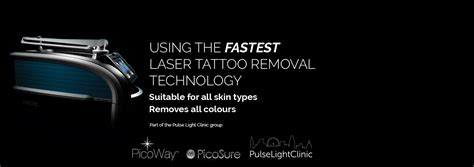 picosure tattoo removal london city removal laser removal in