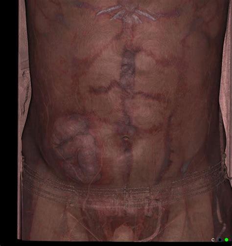 c section incisional hernia symptoms image gallery semilunar hernia