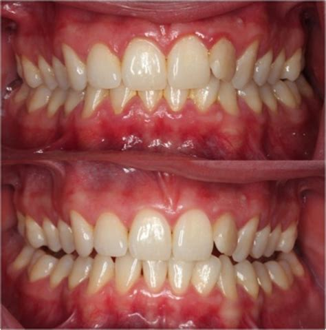 gingivitis treatment gingivitis treatment rancho cucamonga dentists