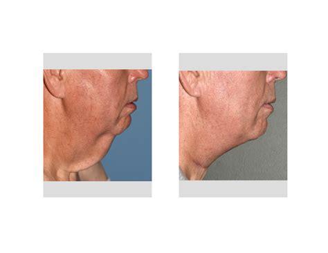 explore plastic surgery dr barry eppley arm lift direct neck lift archives