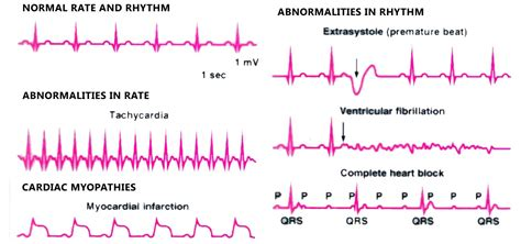 pattern recognition for dummies a quick guide to ecg ivline
