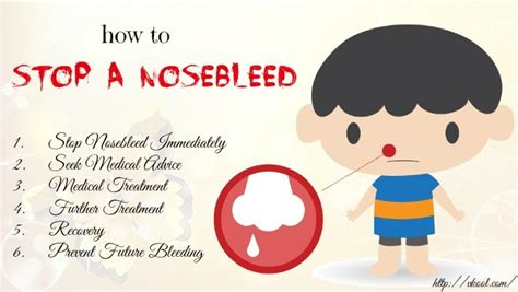 how to stop a from 6 tips and ways of the aid how to stop a nosebleed fast