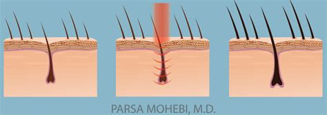 laser light therapy for hair loss reviews laser hair restoration parsa mohebi