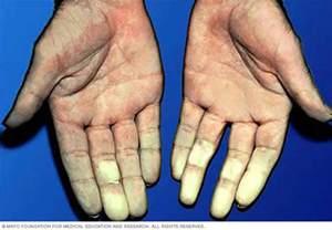 Renaults Disease Raynaud S Disease Mayo Clinic