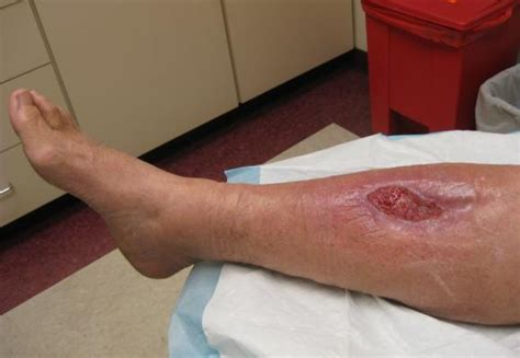 open wound facility in focus photo slideshow skin wound healing center at washington pa