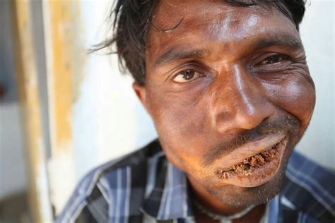 Stone Brick by Photos Meet Indian Man Addicted To Eating Mud Bricks